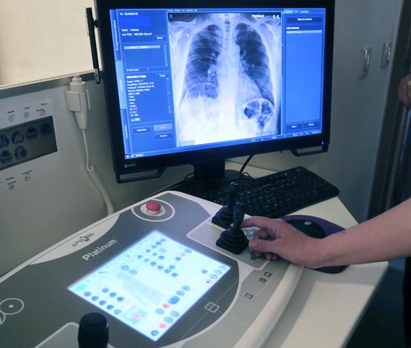 Examen radio poumons Frontignan Thau